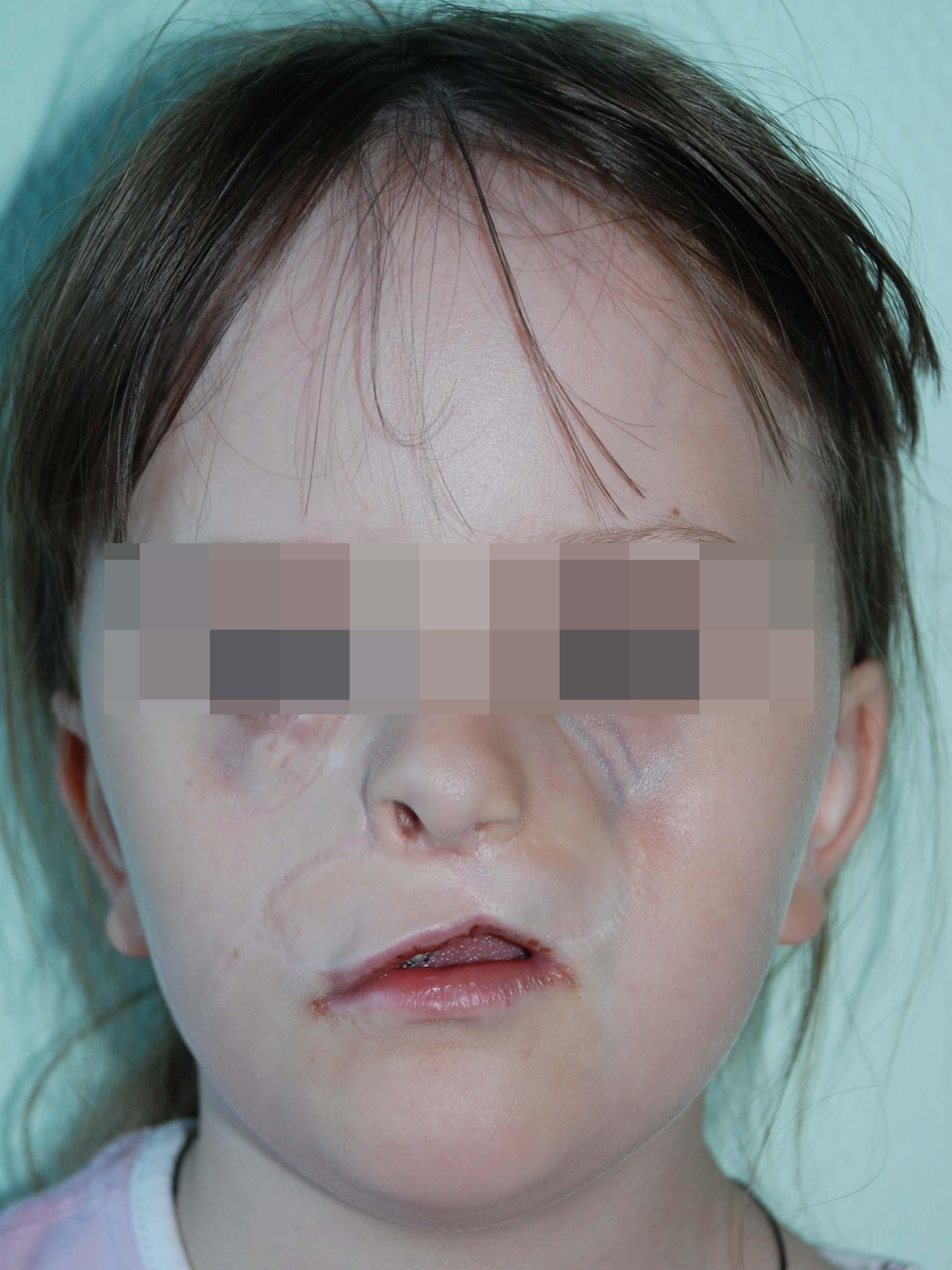 косая расщелина лица после лечения