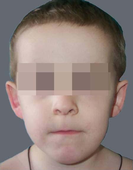 лимфатическая мальформация языка после лечения