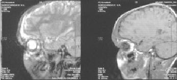 МРТ2 гемлимфангиомы