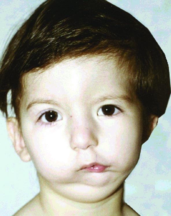 Девочка с гемифациальной микростомией до операции
