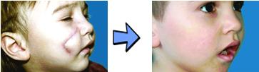 Деформирующий рубец до и после лечения