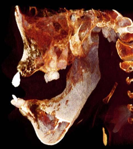 лимфатическая мальформации средней и нижней частей лица кость сбоку