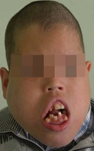 лимфатическая мальформации средней и нижней частей лица