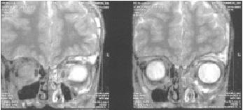 МРТ1 гемлимфангиомы