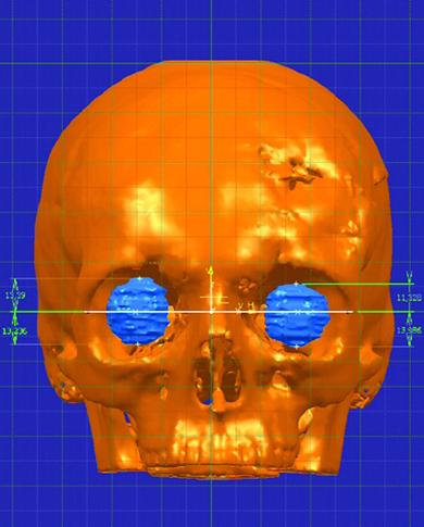 3D-цефалометрия