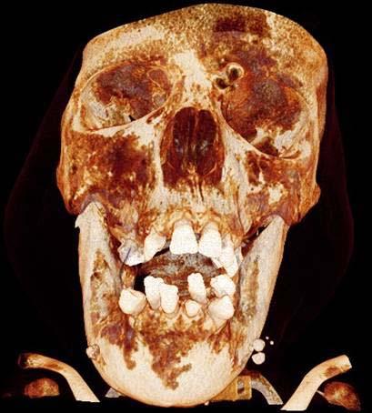 лимфатическая мальформации средней и нижней частей лица кость