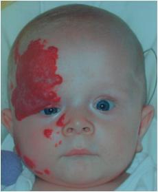 сосудистая гиперплазия