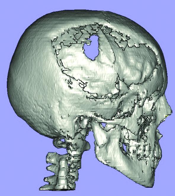 Трехмерная реконструкция черепа
