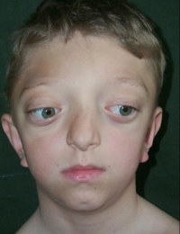 Синдром Крузона фас