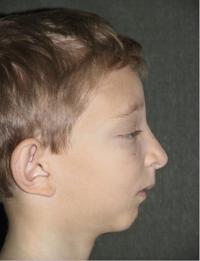 Синдром Крузона после операции профиль
