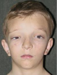 Синдром Крузона после операции фас